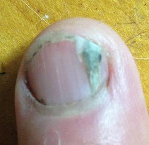 How I Remove A Splinter